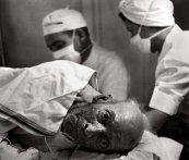 El Dr. Ceriani le aplica al hombre de 85 años anestesia espinal antes de amputar su pierna izquierda.